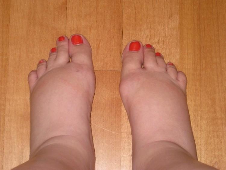 pregnancy swollen feet | simplykierste.com